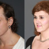 Side by side view of one of our proud male to female facial feminization surgery patients.