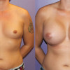 Side by side/before and after photos of male to female breast augmentation patients.