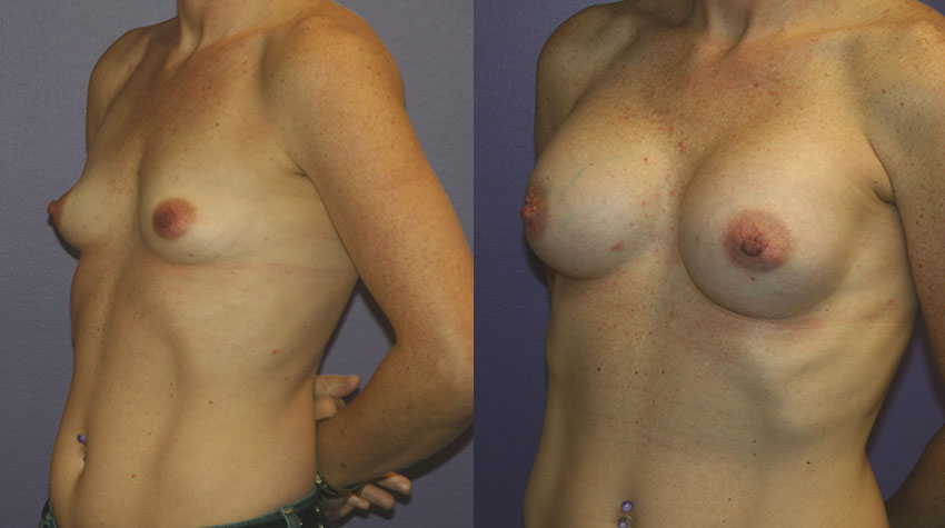 The right time for breast implant surgery