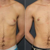 Side by side view of before and after photo of a female to male top surgery patient.
