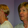 Side by side before and after view of a facial feminization patient